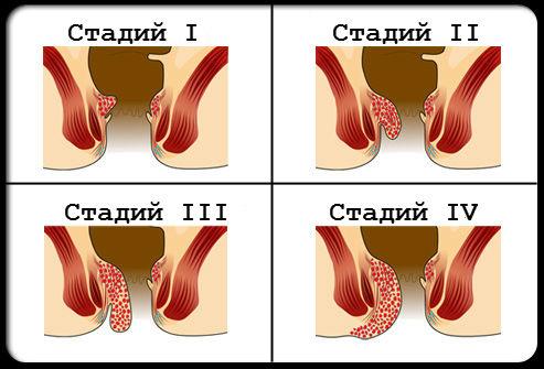 лечение външен хемороид Тромбозирали външни хемороиди - оперират се | Puls.bg